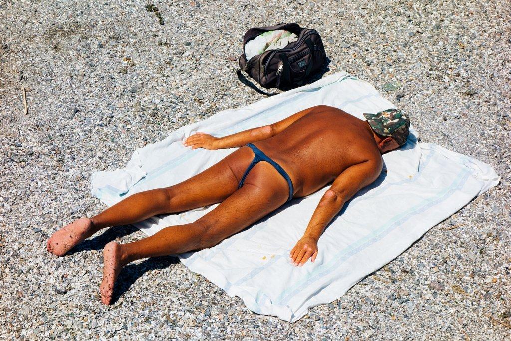 Sunburn in Odessa